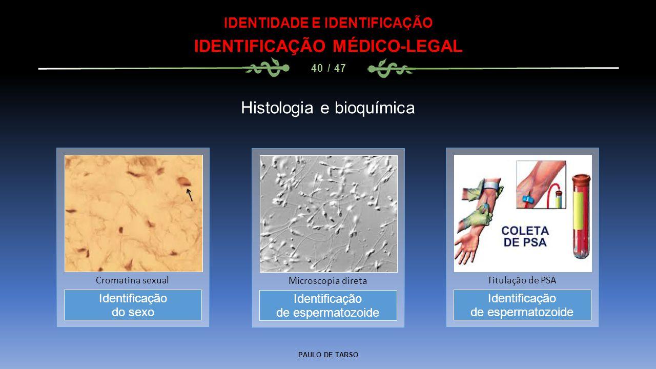 PAULO DE TARSO IDENTIDADE E IDENTIFICAÇÃO IDENTIFICAÇÃO MÉDICO-LEGAL 40 / 47 Histologia e bioquímica Identificação de espermatozoide Microscopia diret