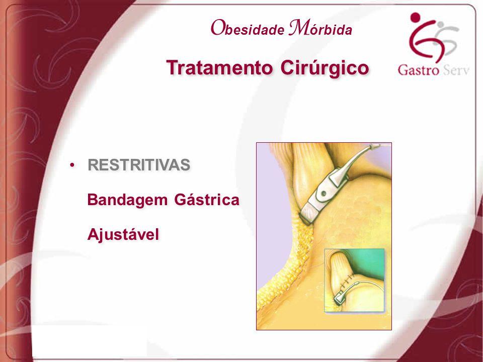 RESTRITIVAS Bandagem Gástrica Ajustável RESTRITIVAS Bandagem Gástrica Ajustável Tratamento Cirúrgico O besidade M órbida