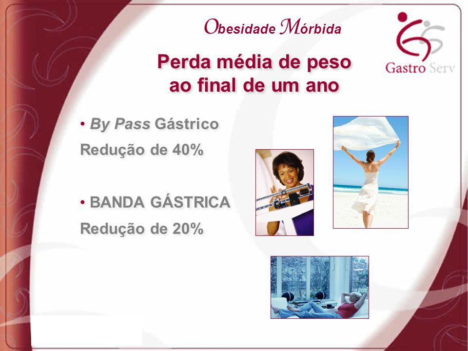 By Pass Gástrico Redução de 40% BANDA GÁSTRICA Redução de 20% By Pass Gástrico Redução de 40% BANDA GÁSTRICA Redução de 20% Perda média de peso ao fin