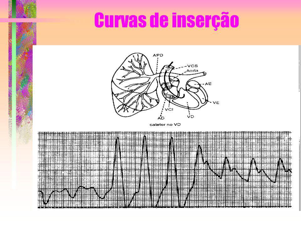 Curvas de inserção