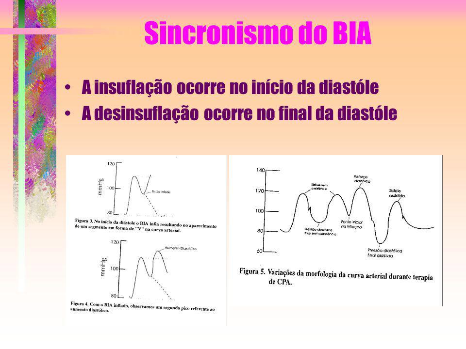 Sincronismo do BIA A insuflação ocorre no início da diastóle A desinsuflação ocorre no final da diastóle