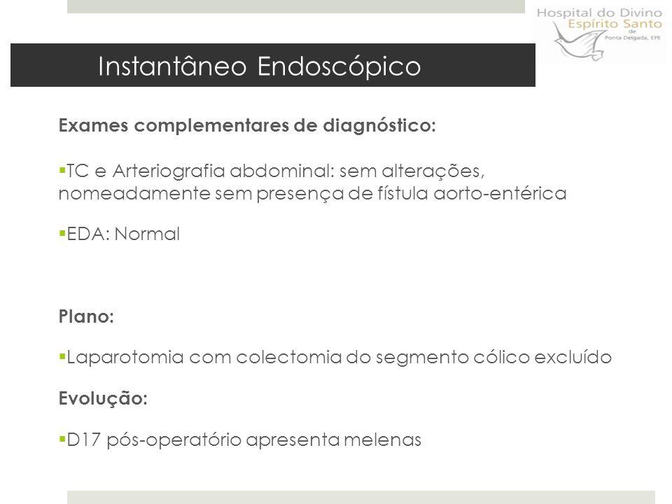 Endoscopia Digestiva Alta Instantâneo Endoscópico Ver vídeo