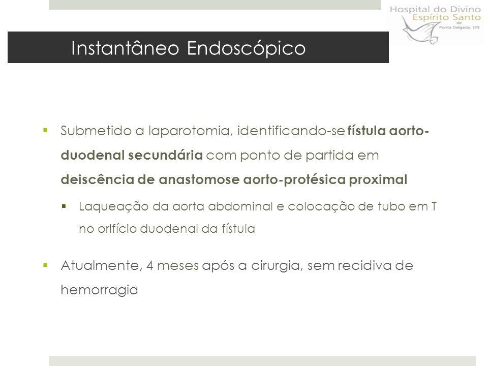  Submetido a laparotomia, identificando-se fístula aorto- duodenal secundária com ponto de partida em deiscência de anastomose aorto-protésica proximal  Laqueação da aorta abdominal e colocação de tubo em T no orifício duodenal da fístula  Atualmente, 4 meses após a cirurgia, sem recidiva de hemorragia Instantâneo Endoscópico