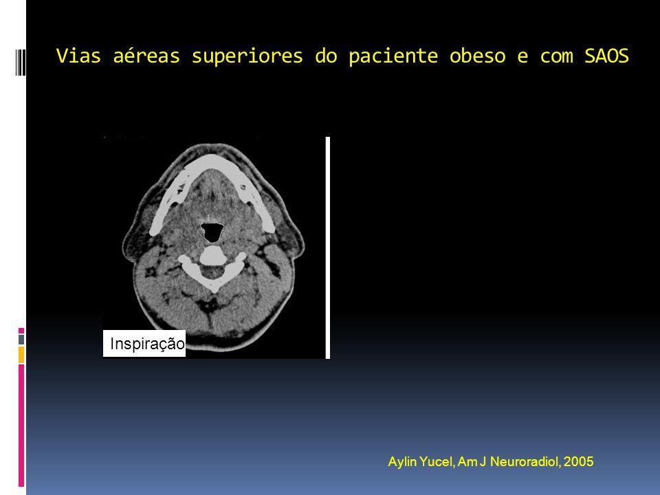 Vias aéreas superiores do paciente obeso e com SAOS Aylin Yucel, Am J Neuroradiol, 2005 Inspiração