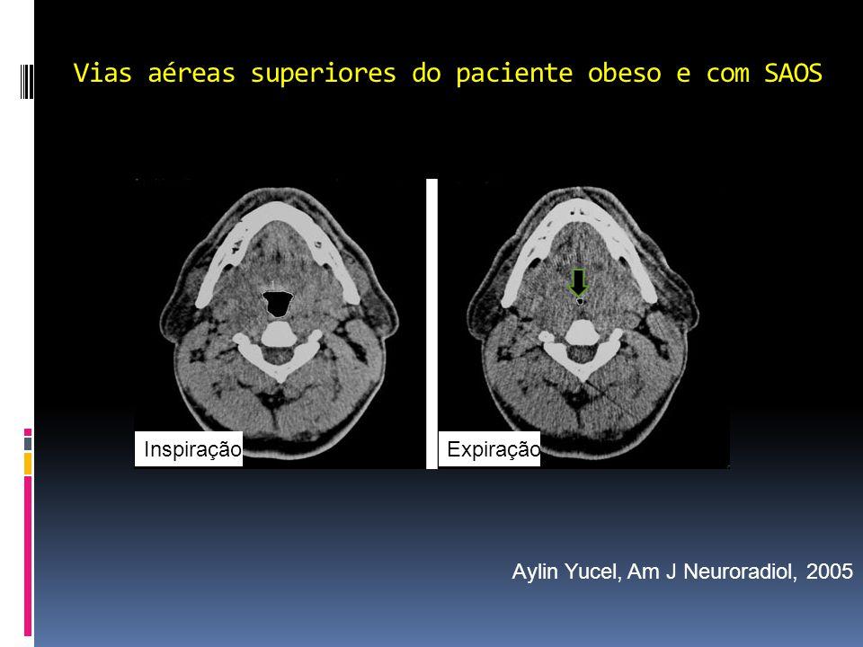 Vias aéreas superiores do paciente obeso e com SAOS Aylin Yucel, Am J Neuroradiol, 2005 InspiraçãoExpiração