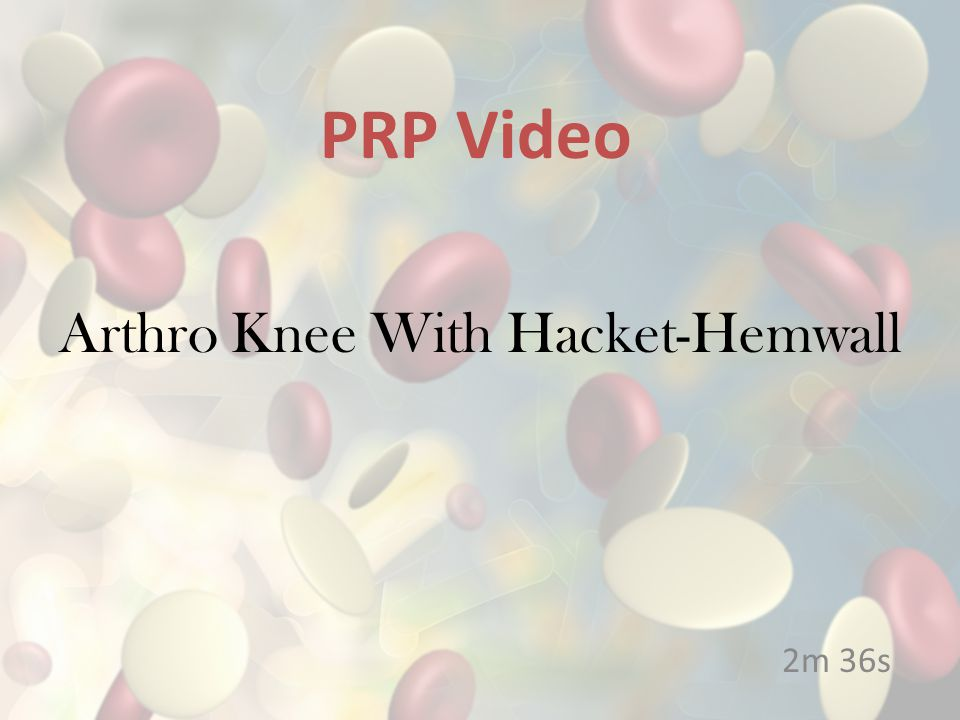 Arthro Knee With Hacket-Hemwall 2m 36s PRP Video