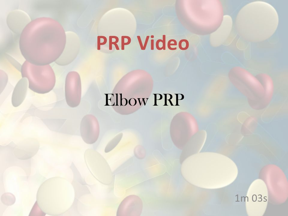 Hip Arthritis Bone and Joint 0m 41s PRP Video