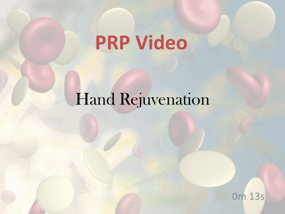 Hand Rejuvenation 0m 13s PRP Video