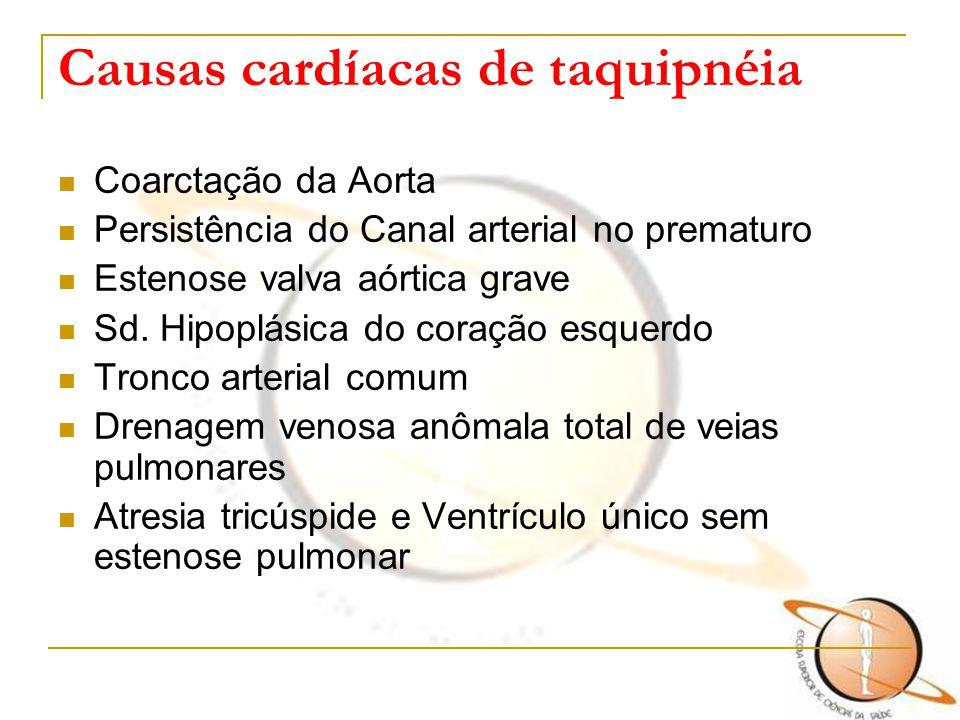 Causas cardíacas de taquipnéia Coarctação da Aorta Persistência do Canal arterial no prematuro Estenose valva aórtica grave Sd. Hipoplásica do coração