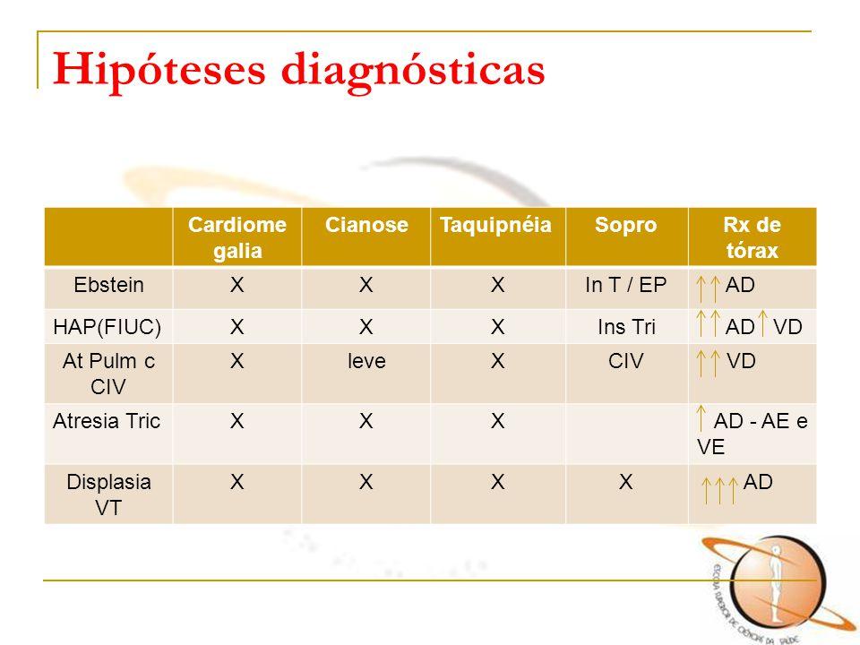 Hipóteses diagnósticas Cardiome galia CianoseTaquipnéiaSoproRx de tórax EbsteinXXXIn T / EP AD HAP(FIUC)XXXIns Tri AD VD At Pulm c CIV XleveXCIV VD At