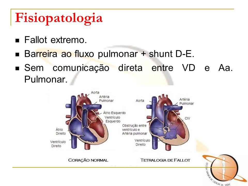 Fisiopatologia Fallot extremo. Barreira ao fluxo pulmonar + shunt D-E. Sem comunicação direta entre VD e Aa. Pulmonar.