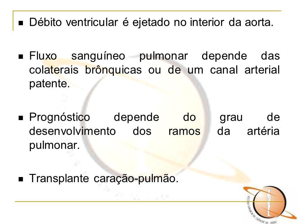 Débito ventricular é ejetado no interior da aorta. Fluxo sanguíneo pulmonar depende das colaterais brônquicas ou de um canal arterial patente. Prognós