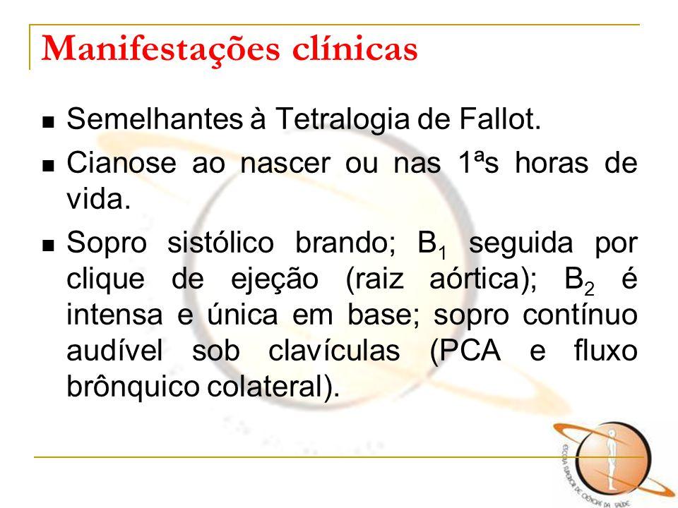 Manifestações clínicas Semelhantes à Tetralogia de Fallot. Cianose ao nascer ou nas 1ªs horas de vida. Sopro sistólico brando; B 1 seguida por clique