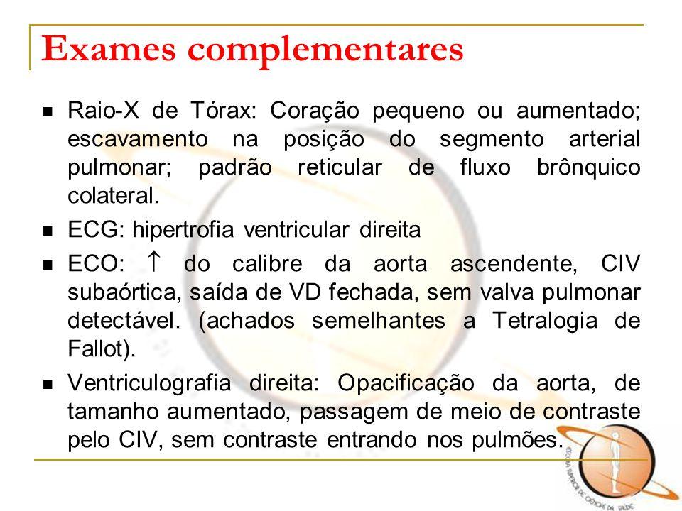 Exames complementares Raio-X de Tórax: Coração pequeno ou aumentado; escavamento na posição do segmento arterial pulmonar; padrão reticular de fluxo b