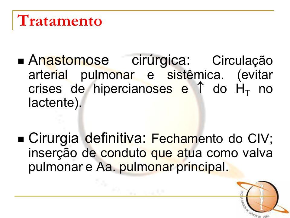 Tratamento Anastomose cirúrgica: Circulação arterial pulmonar e sistêmica. (evitar crises de hipercianoses e  do H T no lactente). Cirurgia definitiv