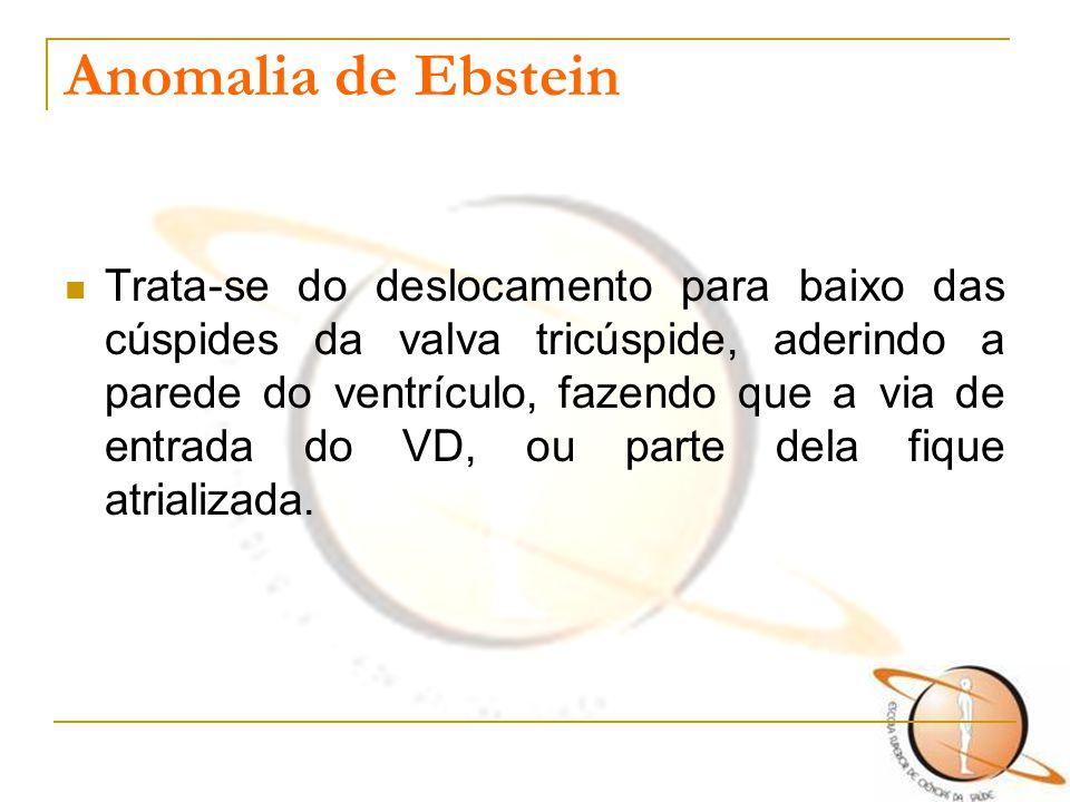 Anomalia de Ebstein Trata-se do deslocamento para baixo das cúspides da valva tricúspide, aderindo a parede do ventrículo, fazendo que a via de entrad