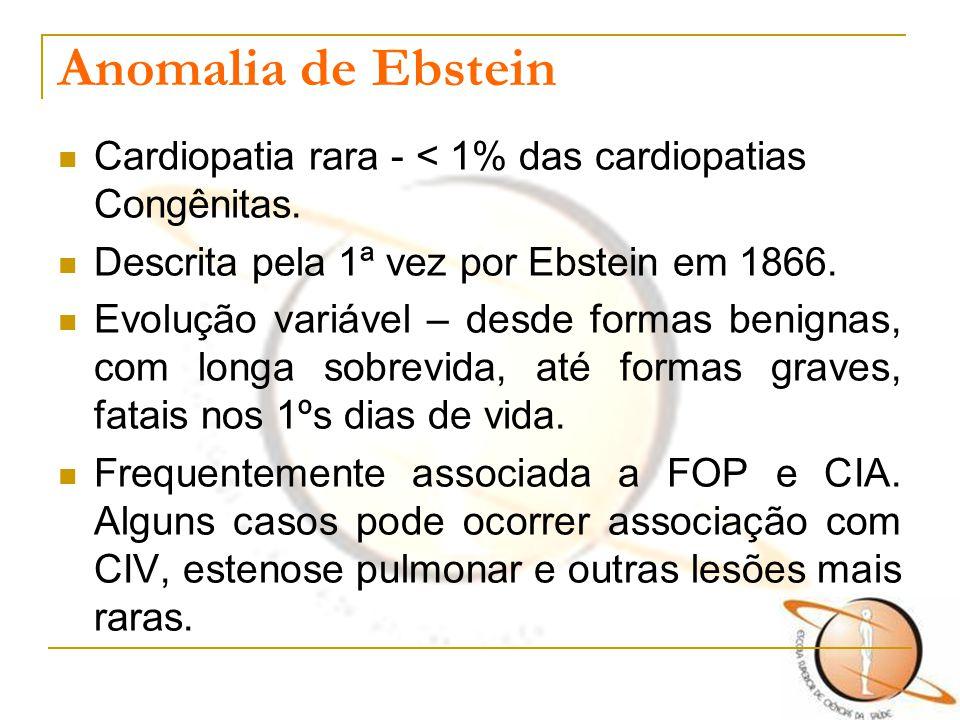 Anomalia de Ebstein Cardiopatia rara - < 1% das cardiopatias Congênitas. Descrita pela 1ª vez por Ebstein em 1866. Evolução variável – desde formas be