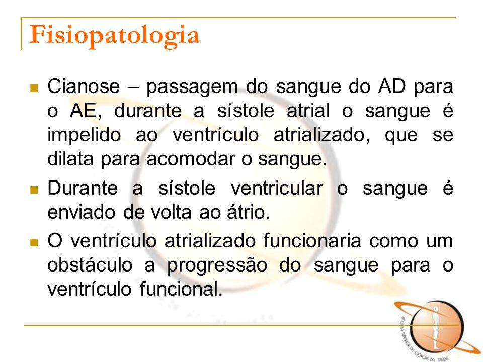 Fisiopatologia Cianose – passagem do sangue do AD para o AE, durante a sístole atrial o sangue é impelido ao ventrículo atrializado, que se dilata par