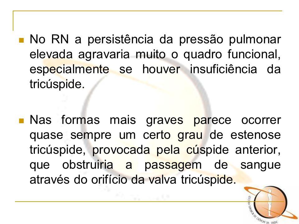 No RN a persistência da pressão pulmonar elevada agravaria muito o quadro funcional, especialmente se houver insuficiência da tricúspide. Nas formas m