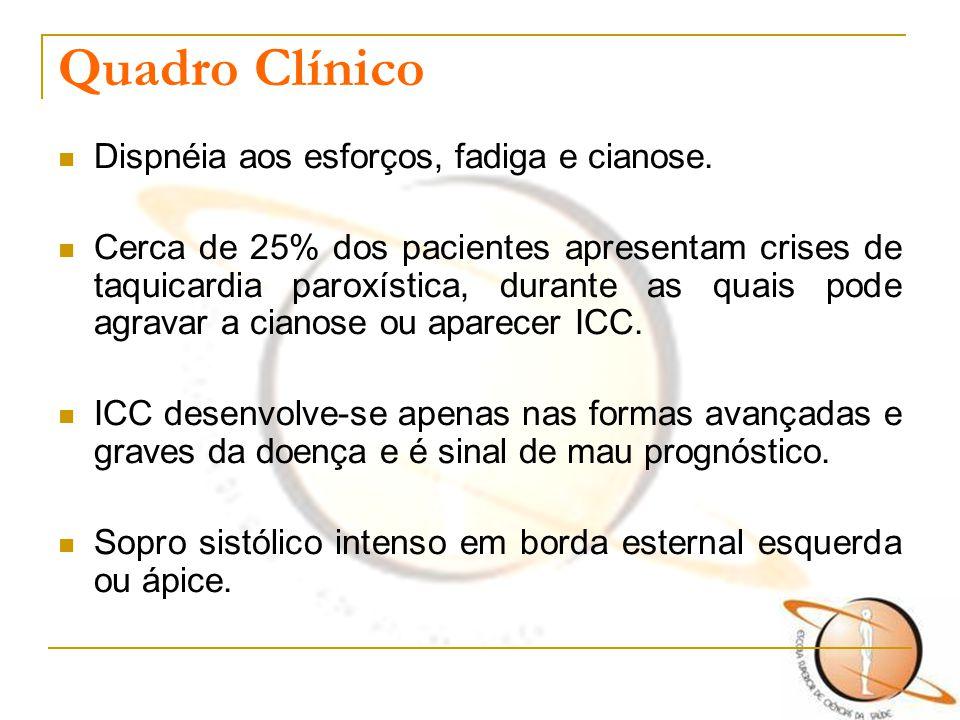 Quadro Clínico Dispnéia aos esforços, fadiga e cianose. Cerca de 25% dos pacientes apresentam crises de taquicardia paroxística, durante as quais pode
