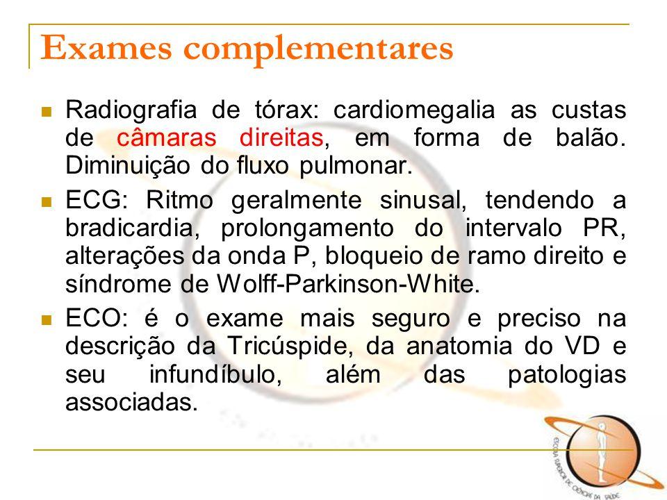 Exames complementares Radiografia de tórax: cardiomegalia as custas de câmaras direitas, em forma de balão. Diminuição do fluxo pulmonar. ECG: Ritmo g
