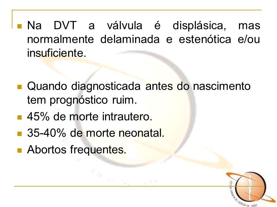 Na DVT a válvula é displásica, mas normalmente delaminada e estenótica e/ou insuficiente. Quando diagnosticada antes do nascimento tem prognóstico rui