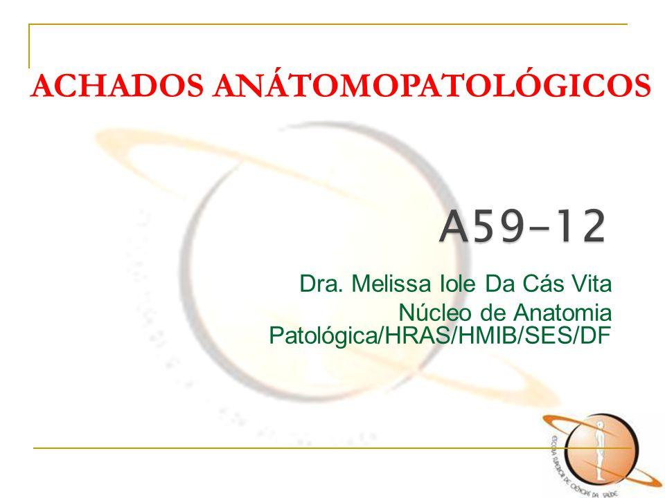 Dra. Melissa Iole Da Cás Vita Núcleo de Anatomia Patológica/HRAS/HMIB/SES/DF ACHADOS ANÁTOMOPATOLÓGICOS