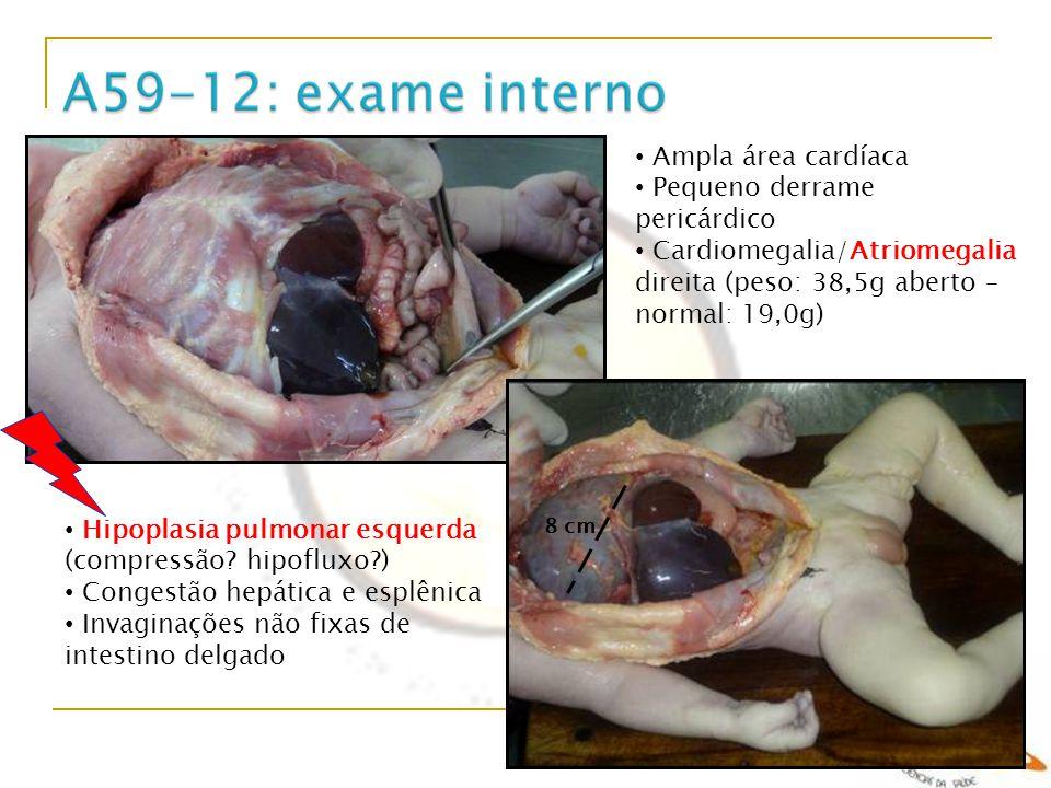 Ampla área cardíaca Pequeno derrame pericárdico Cardiomegalia/Atriomegalia direita (peso: 38,5g aberto – normal: 19,0g) 8 cm Hipoplasia pulmonar esque