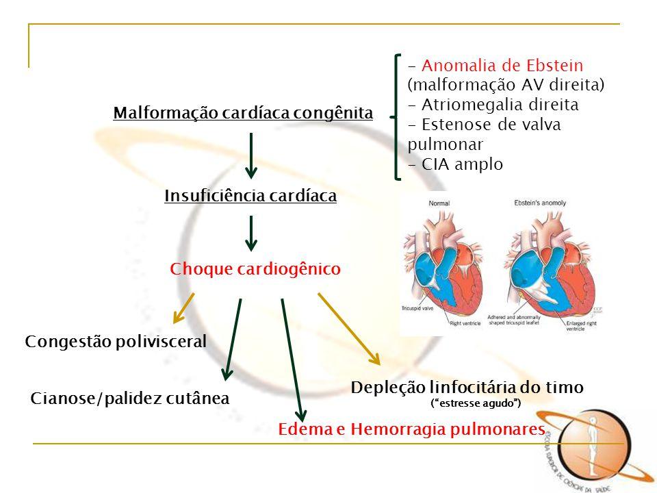 Malformação cardíaca congênita - Anomalia de Ebstein (malformação AV direita) - Atriomegalia direita - Estenose de valva pulmonar - CIA amplo Insufici