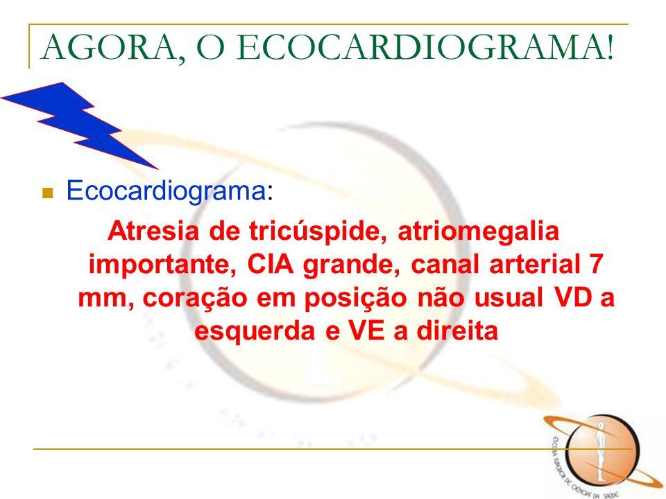AGORA, O ECOCARDIOGRAMA! Ecocardiograma: Atresia de tricúspide, atriomegalia importante, CIA grande, canal arterial 7 mm, coração em posição não usual