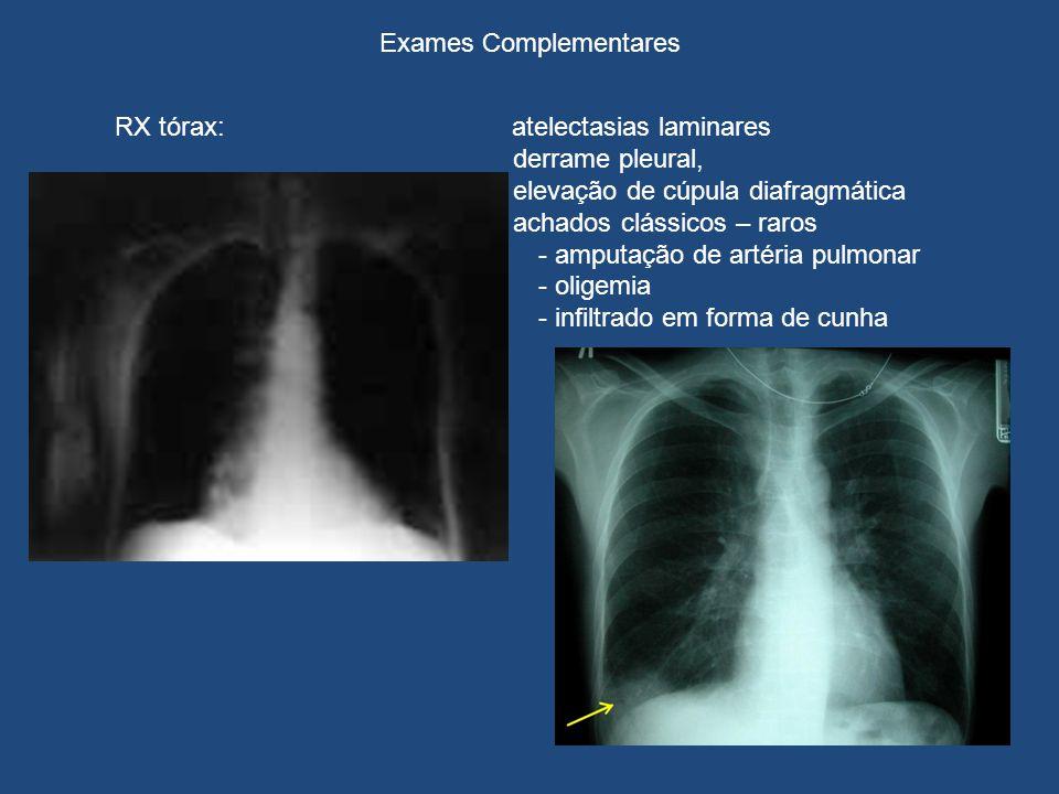 Exames Complementares RX tórax: atelectasias laminares derrame pleural, e elevação de cúpula diafragmática achados clássicos – raros - amputação de artéria pulmonar - oligemia - infiltrado em forma de cunha ECG ECO