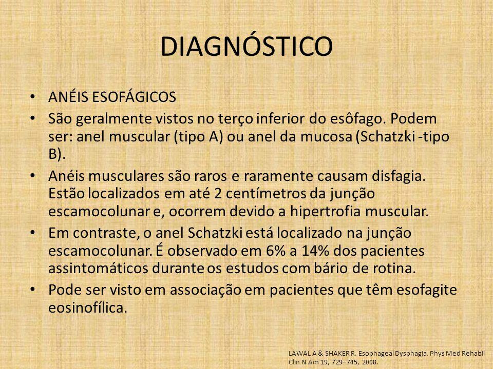 DIAGNÓSTICO ANÉIS ESOFÁGICOS São geralmente vistos no terço inferior do esôfago. Podem ser: anel muscular (tipo A) ou anel da mucosa (Schatzki -tipo B