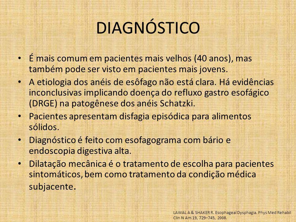 É mais comum em pacientes mais velhos (40 anos), mas também pode ser visto em pacientes mais jovens. A etiologia dos anéis de esôfago não está clara.