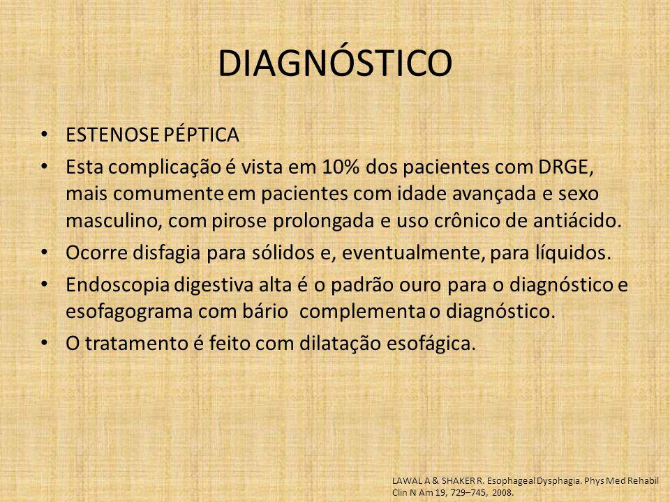 ESTENOSE PÉPTICA Esta complicação é vista em 10% dos pacientes com DRGE, mais comumente em pacientes com idade avançada e sexo masculino, com pirose prolongada e uso crônico de antiácido.