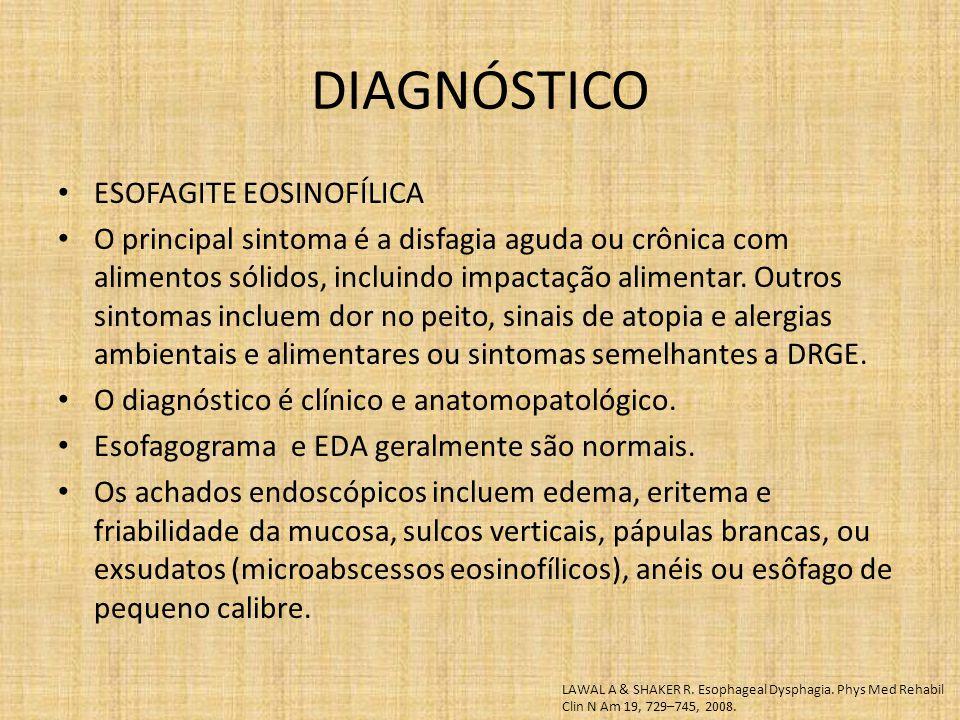 ESOFAGITE EOSINOFÍLICA O principal sintoma é a disfagia aguda ou crônica com alimentos sólidos, incluindo impactação alimentar. Outros sintomas inclue