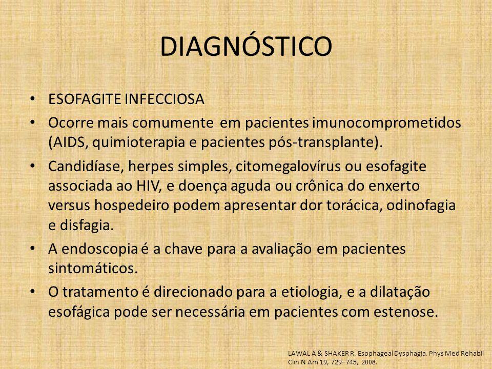 ESOFAGITE INFECCIOSA Ocorre mais comumente em pacientes imunocomprometidos (AIDS, quimioterapia e pacientes pós-transplante). Candidíase, herpes simpl