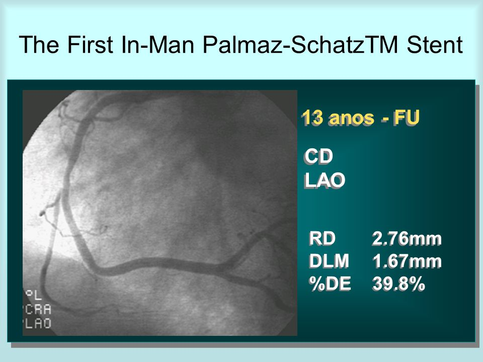 13 anos - FU CD LAO CD LAO RD2.76mm DLM1.67mm %DE39.8% RD2.76mm DLM1.67mm %DE39.8% The First In-Man Palmaz-SchatzTM Stent