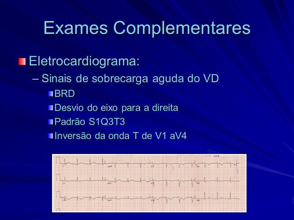 Exames Complementares Eletrocardiograma: –Sinais de sobrecarga aguda do VD BRD Desvio do eixo para a direita Padrão S1Q3T3 Inversão da onda T de V1 aV