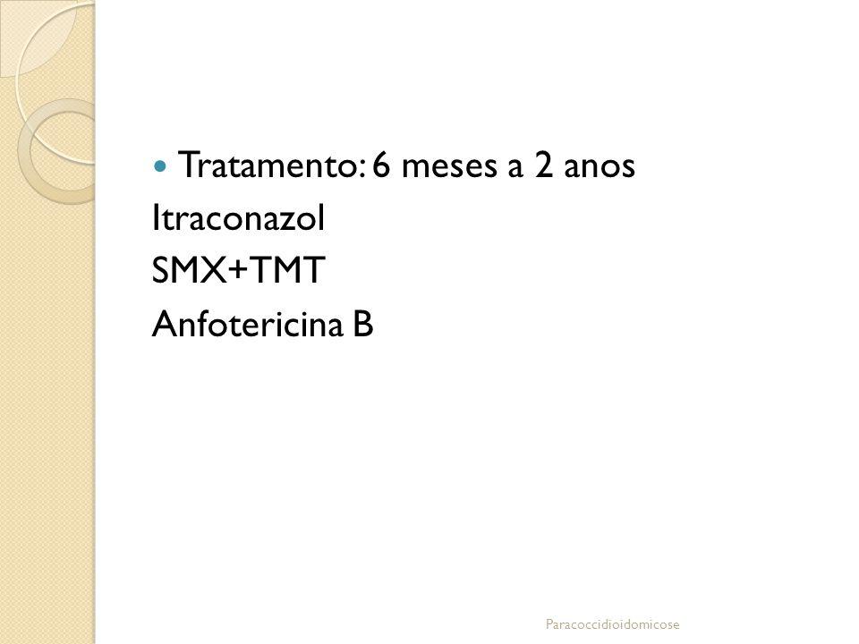 Tratamento: 6 meses a 2 anos Itraconazol SMX+TMT Anfotericina B Paracoccidioidomicose