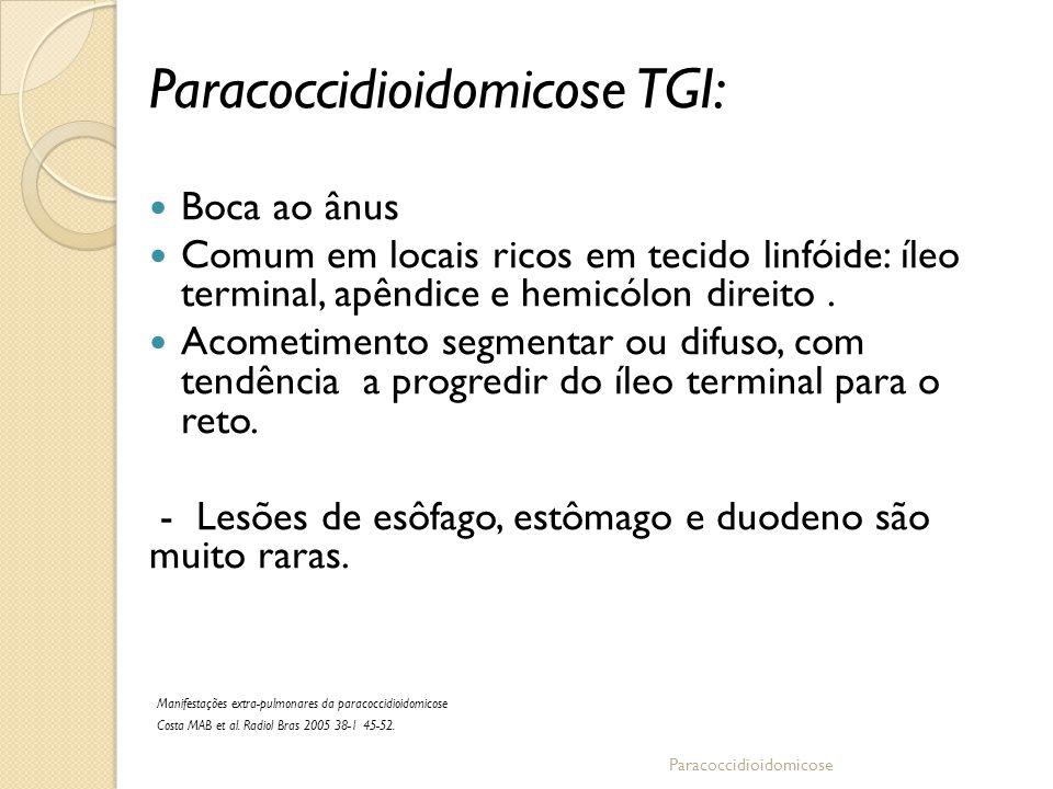 Paracoccidioidomicose TGI: Boca ao ânus Comum em locais ricos em tecido linfóide: íleo terminal, apêndice e hemicólon direito. Acometimento segmentar