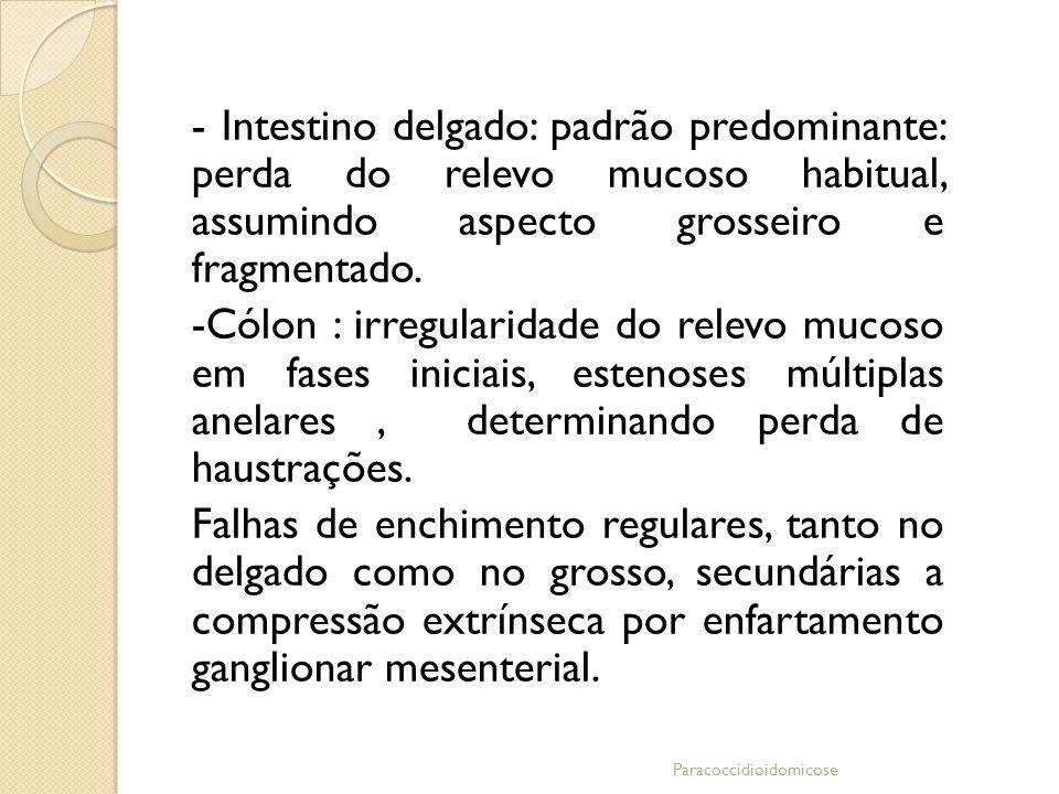 - Intestino delgado: padrão predominante: perda do relevo mucoso habitual, assumindo aspecto grosseiro e fragmentado. -Cólon : irregularidade do relev