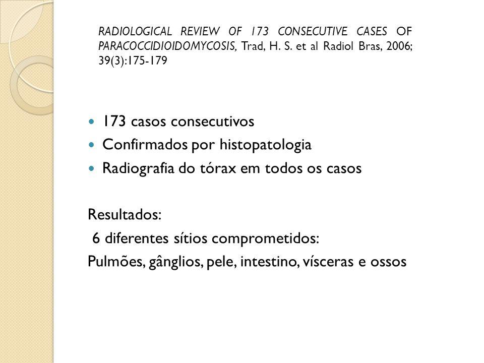 173 casos consecutivos Confirmados por histopatologia Radiografia do tórax em todos os casos Resultados: 6 diferentes sítios comprometidos: Pulmões, g