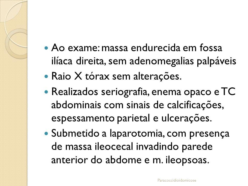 Ao exame: massa endurecida em fossa ilíaca direita, sem adenomegalias palpáveis Raio X tórax sem alterações. Realizados seriografia, enema opaco e TC