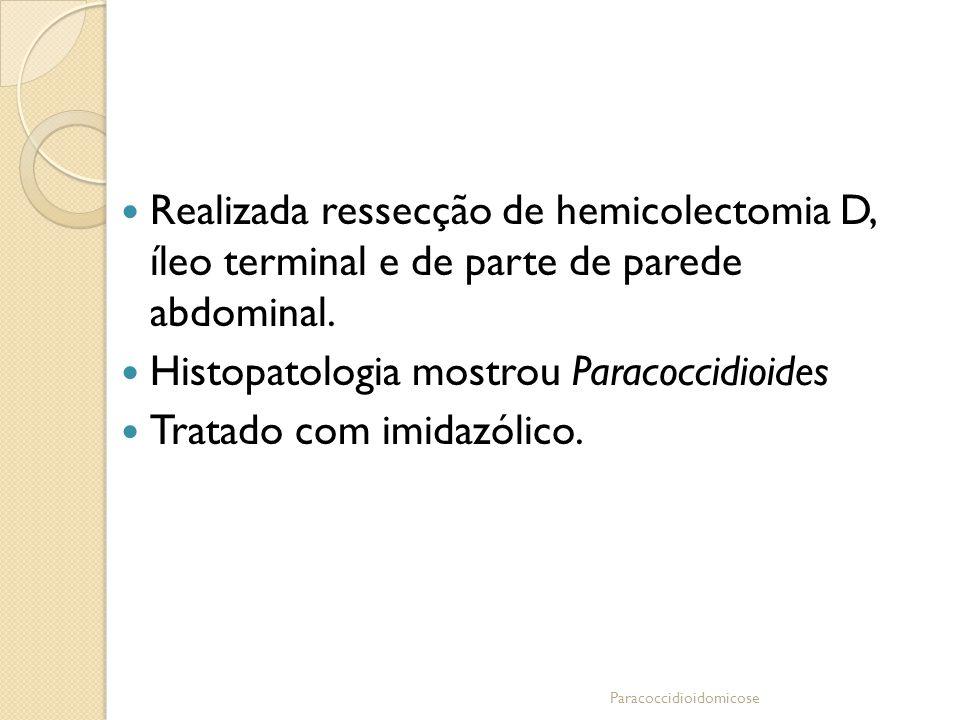 Realizada ressecção de hemicolectomia D, íleo terminal e de parte de parede abdominal. Histopatologia mostrou Paracoccidioides Tratado com imidazólico