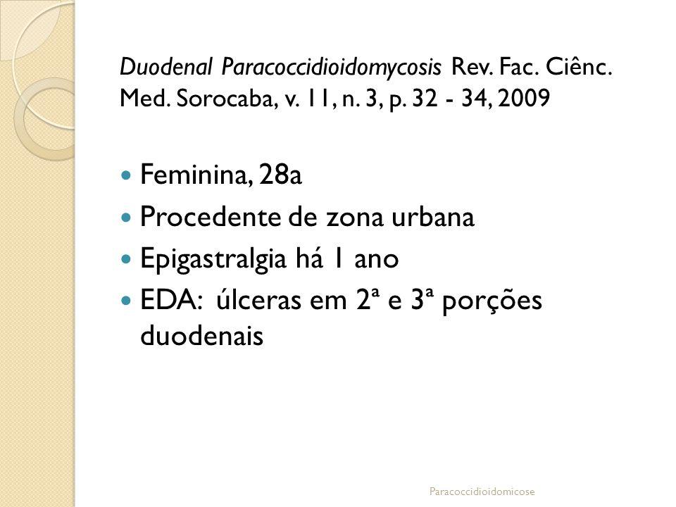 Duodenal Paracoccidioidomycosis Rev. Fac. Ciênc. Med. Sorocaba, v. 11, n. 3, p. 32 - 34, 2009 Feminina, 28a Procedente de zona urbana Epigastralgia há