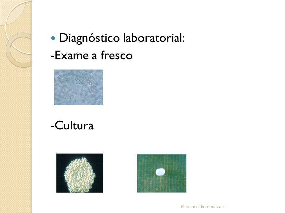 Diagnóstico laboratorial: -Exame a fresco -Cultura Paracoccidioidomicose