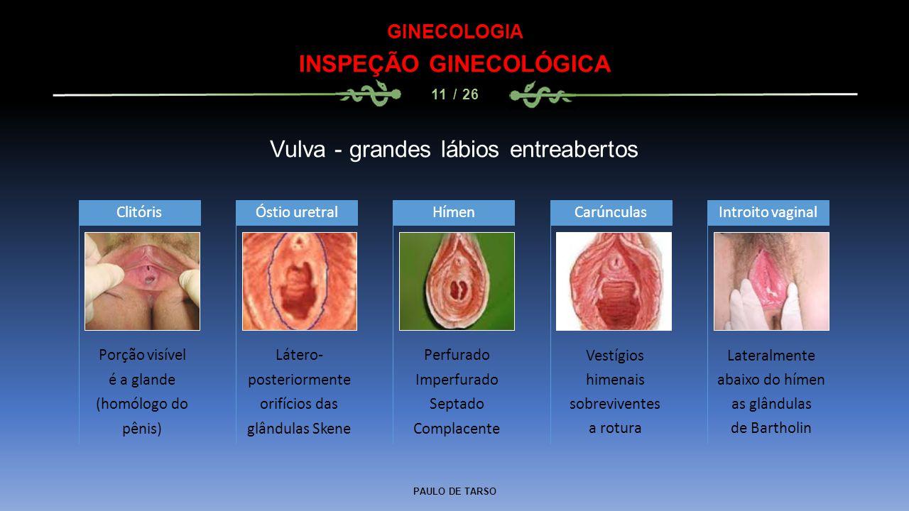 PAULO DE TARSO GINECOLOGIA INSPEÇÃO GINECOLÓGICA 11 / 26 Vulva - grandes lábios entreabertos Porção visível é a glande (homólogo do pênis) Clitóris Látero- posteriormente orifícios das glândulas Skene Óstio uretral Perfurado Imperfurado Septado Complacente HímenCarúnculasIntroito vaginal Vestígios himenais sobreviventes a rotura Lateralmente abaixo do hímen as glândulas de Bartholin