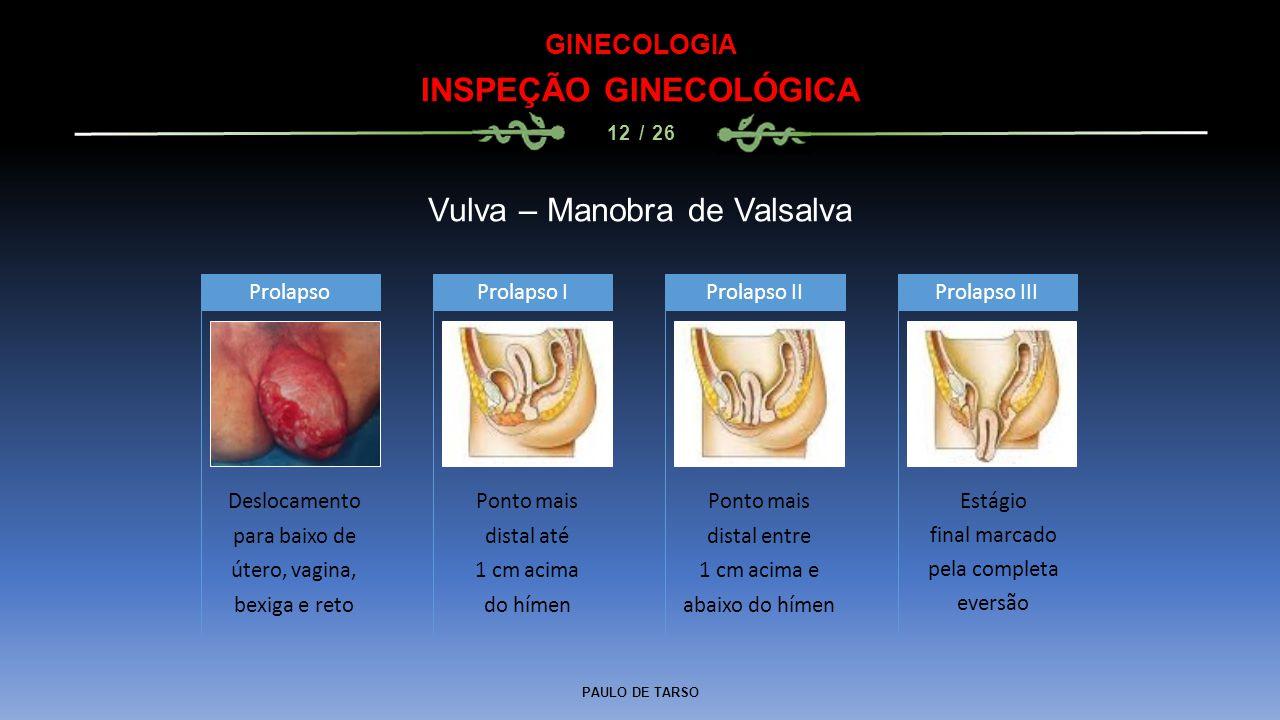 PAULO DE TARSO GINECOLOGIA INSPEÇÃO GINECOLÓGICA 12 / 26 Vulva – Manobra de Valsalva Deslocamento para baixo de útero, vagina, bexiga e reto Prolapso