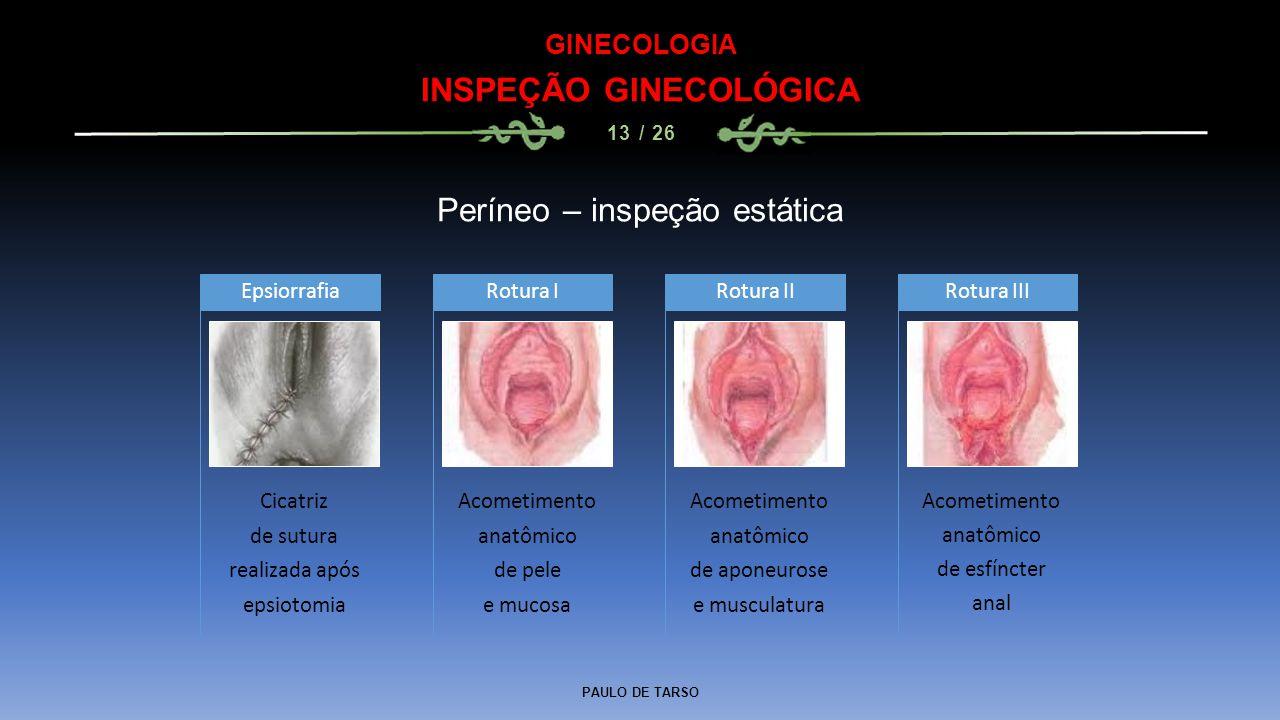 PAULO DE TARSO GINECOLOGIA INSPEÇÃO GINECOLÓGICA 13 / 26 Períneo – inspeção estática Cicatriz de sutura realizada após epsiotomia Epsiorrafia Acometim