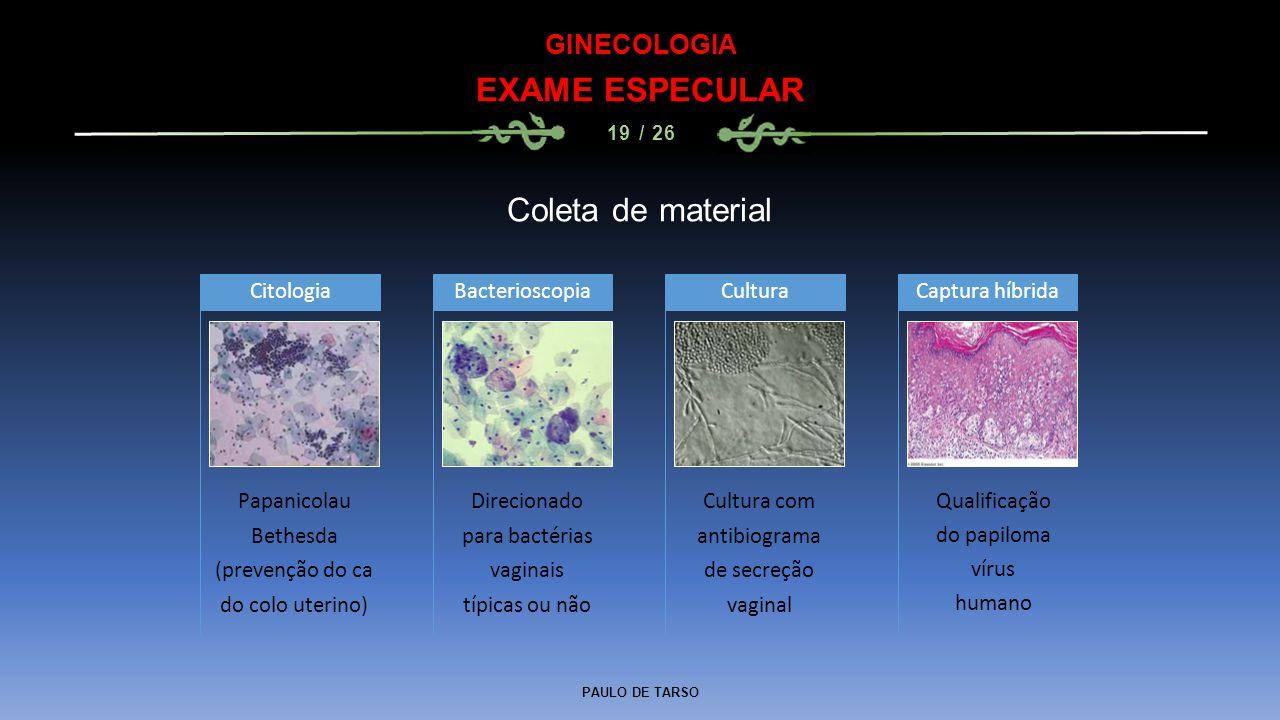 PAULO DE TARSO GINECOLOGIA EXAME ESPECULAR 19 / 26 Coleta de material Papanicolau Bethesda (prevenção do ca do colo uterino) Citologia Direcionado par